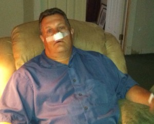 Several hours after outpatient Sinus surgery